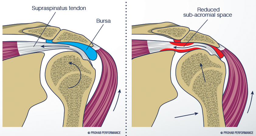 Shoulder-Impingement-Syndrome